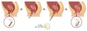Trẻ hoá vùng kín không phẫu thuật