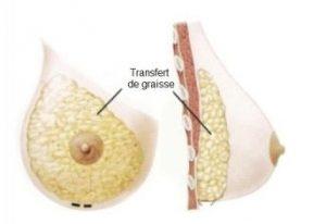 Quy trình nâng ngực bằng mỡ tự thân